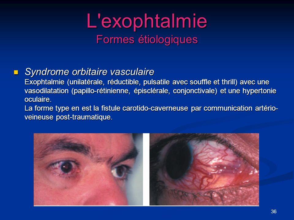 36 L'exophtalmie Formes étiologiques Syndrome orbitaire vasculaire Exophtalmie (unilatérale, réductible, pulsatile avec souffle et thrill) avec une va