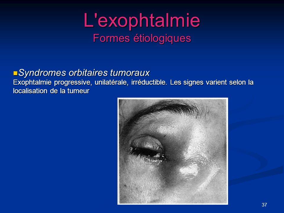 37 L'exophtalmie Formes étiologiques Syndromes orbitaires tumoraux Exophtalmie progressive, unilatérale, irréductible. Les signes varient selon la loc
