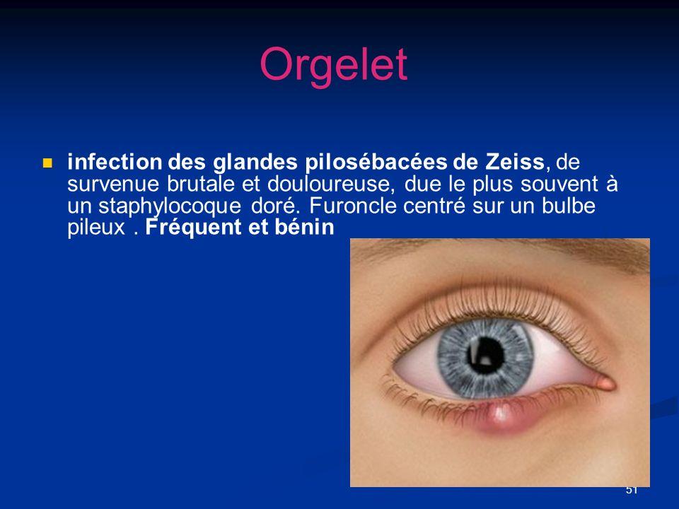 51 Orgelet infection des glandes pilosébacées de Zeiss, de survenue brutale et douloureuse, due le plus souvent à un staphylocoque doré. Furoncle cent