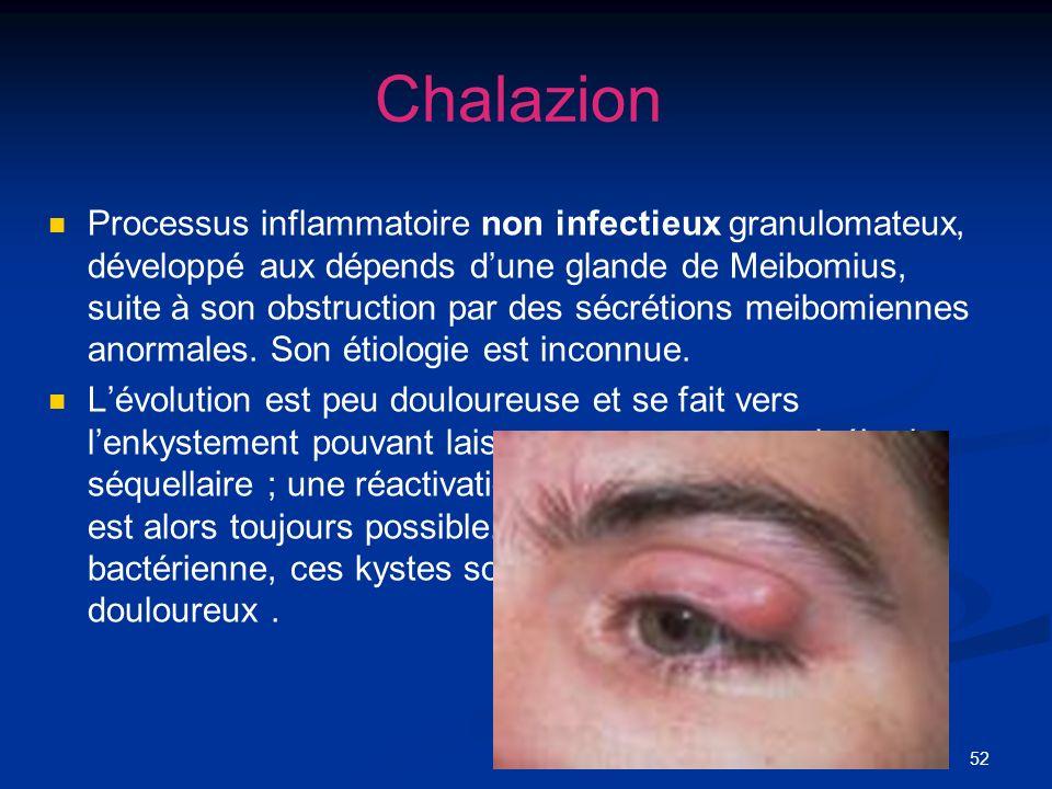 52 Chalazion Processus inflammatoire non infectieux granulomateux, développé aux dépends dune glande de Meibomius, suite à son obstruction par des séc