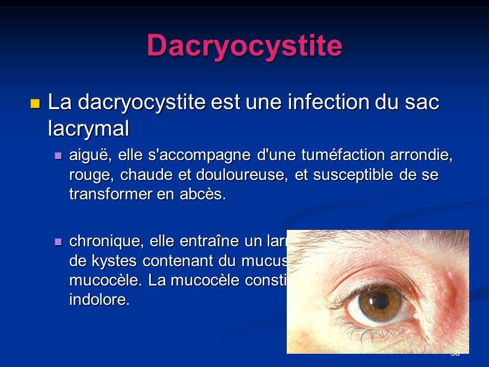 58 Dacryocystite La dacryocystite est une infection du sac lacrymal La dacryocystite est une infection du sac lacrymal aiguë, elle s'accompagne d'une
