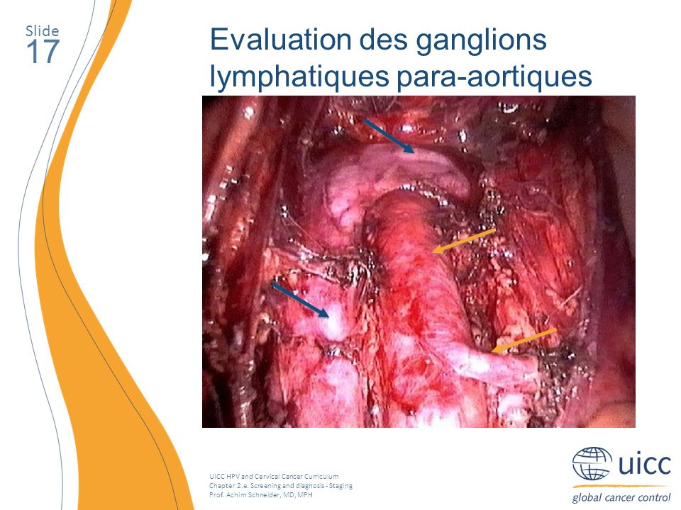 UICC HPV and Cervical Cancer Curriculum Chapter 2.e. Screening and diagnosis - Staging Prof. Achim Schneider, MD, MPH Slide 17 Evaluation des ganglion
