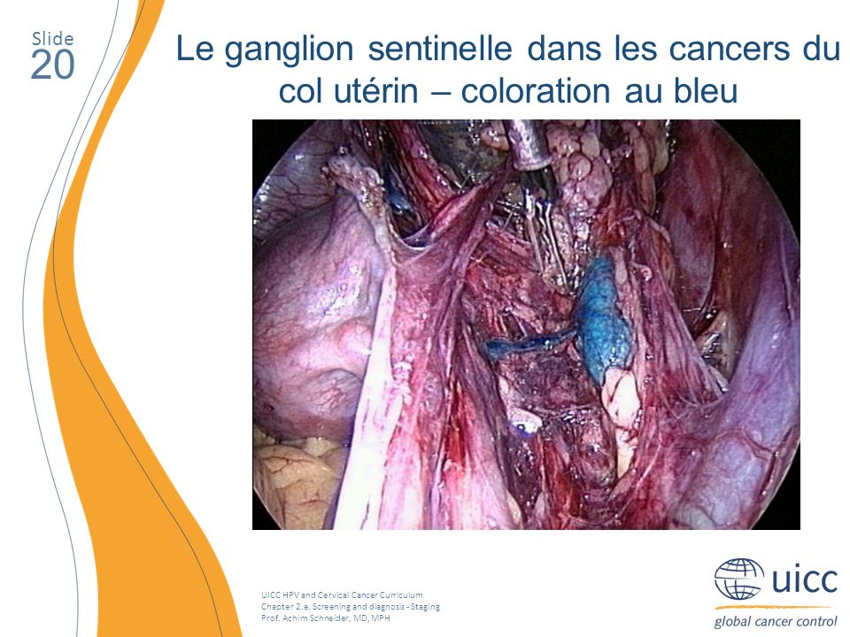 UICC HPV and Cervical Cancer Curriculum Chapter 2.e. Screening and diagnosis - Staging Prof. Achim Schneider, MD, MPH Slide 20 Le ganglion sentinelle