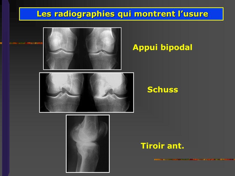 Appui bipodal Schuss Tiroir ant. Les radiographies qui montrent lusure Les radiographies qui montrent lusure