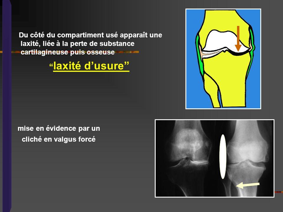 Du côté du compartiment usé apparaît une laxité, liée à la perte de substance cartilagineuse puis osseuse laxité dusure mise en évidence par un cliché