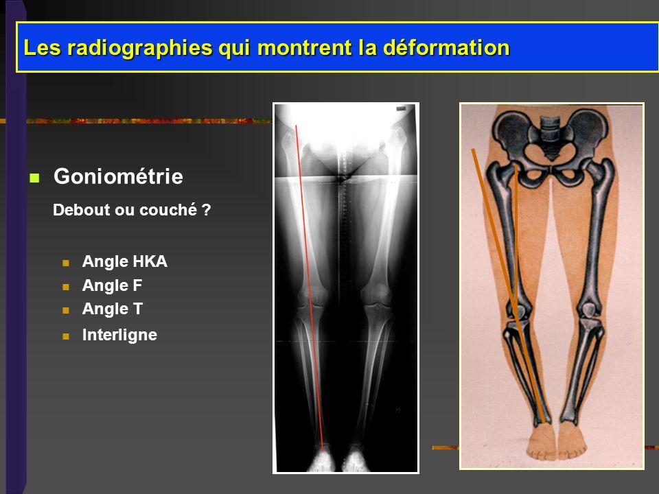 Les radiographies qui montrent la déformation Goniométrie Debout ou couché ? Angle HKA Angle F Angle T Interligne