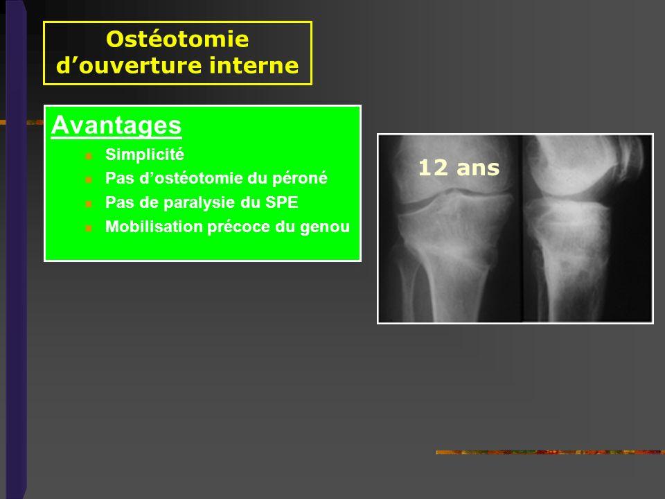 Ostéotomie douverture interne Avantages Simplicité Pas dostéotomie du péroné Pas de paralysie du SPE Mobilisation précoce du genou 12 ans