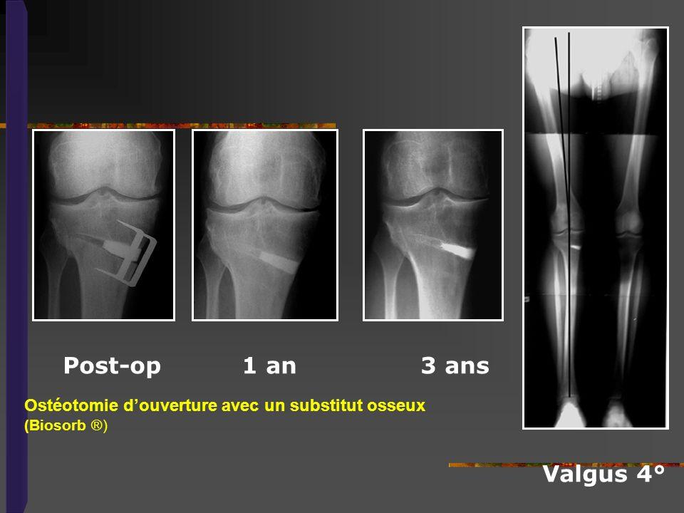 Ostéotomie douverture avec un substitut osseux (Biosorb ®) Post-op 1 an 3 ans Valgus 4°