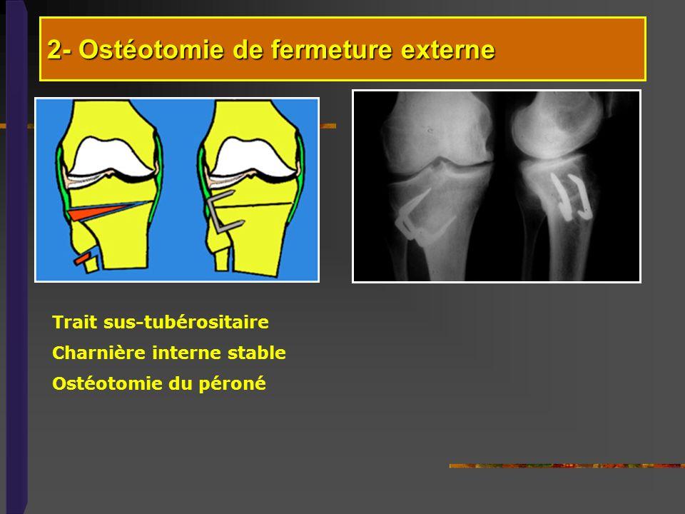Trait sus-tubérositaire Charnière interne stable Ostéotomie du péroné 2- Ostéotomie de fermeture externe
