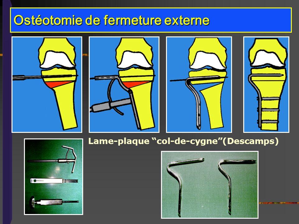 Ostéotomie de fermeture externe Lame-plaque col-de-cygne(Descamps)