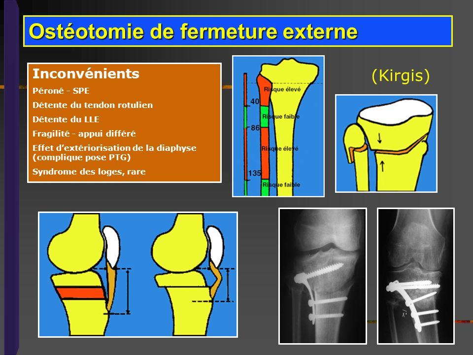 Ostéotomie de fermeture externe (Kirgis) Inconvénients Péroné - SPE Détente du tendon rotulien Détente du LLE Fragilité - appui différé Effet dextério