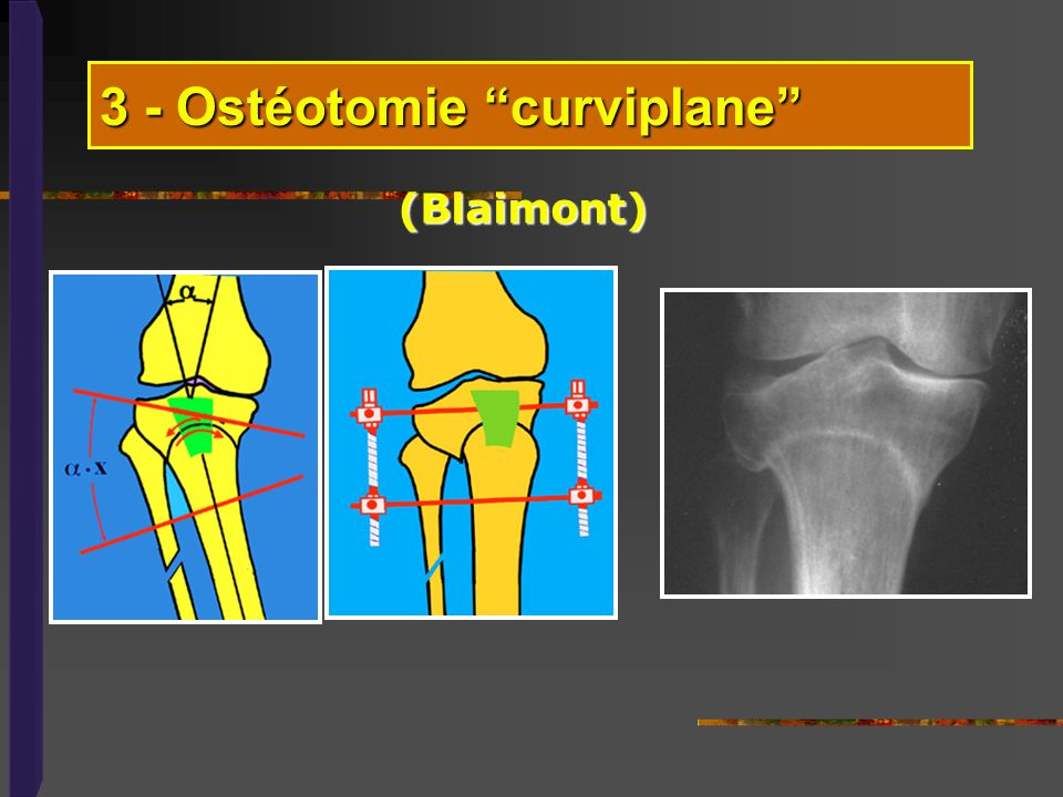 3 - Ostéotomie curviplane (Blaimont)