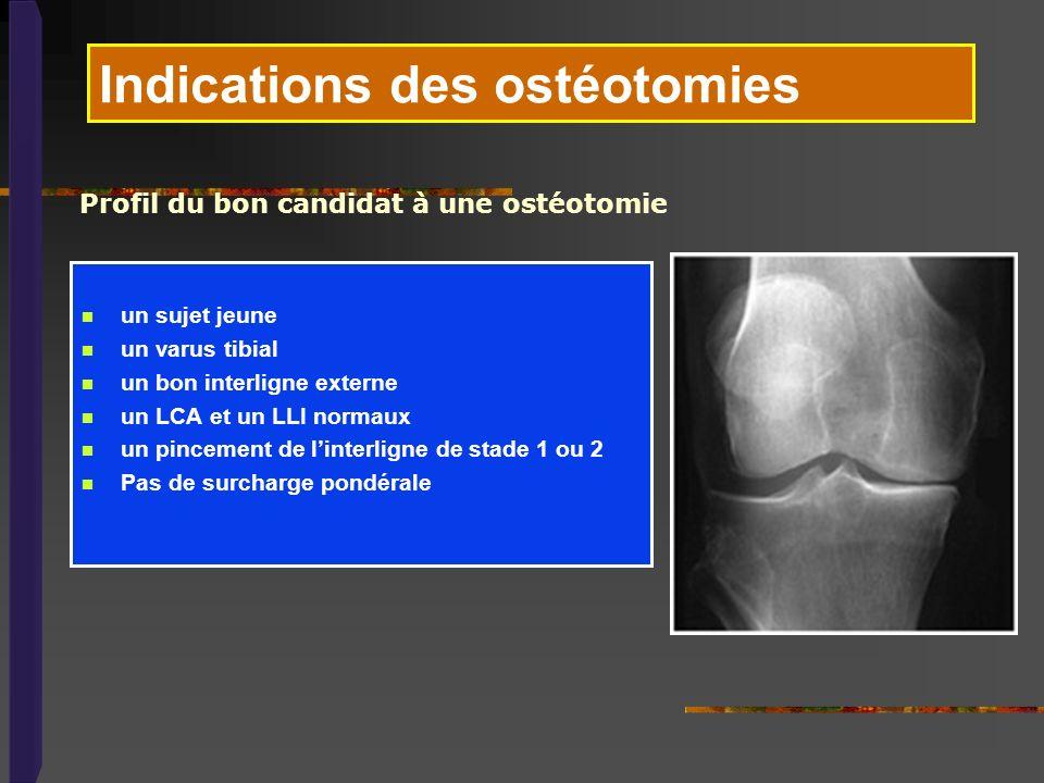 Indications des ostéotomies un sujet jeune un varus tibial un bon interligne externe un LCA et un LLI normaux un pincement de linterligne de stade 1 o