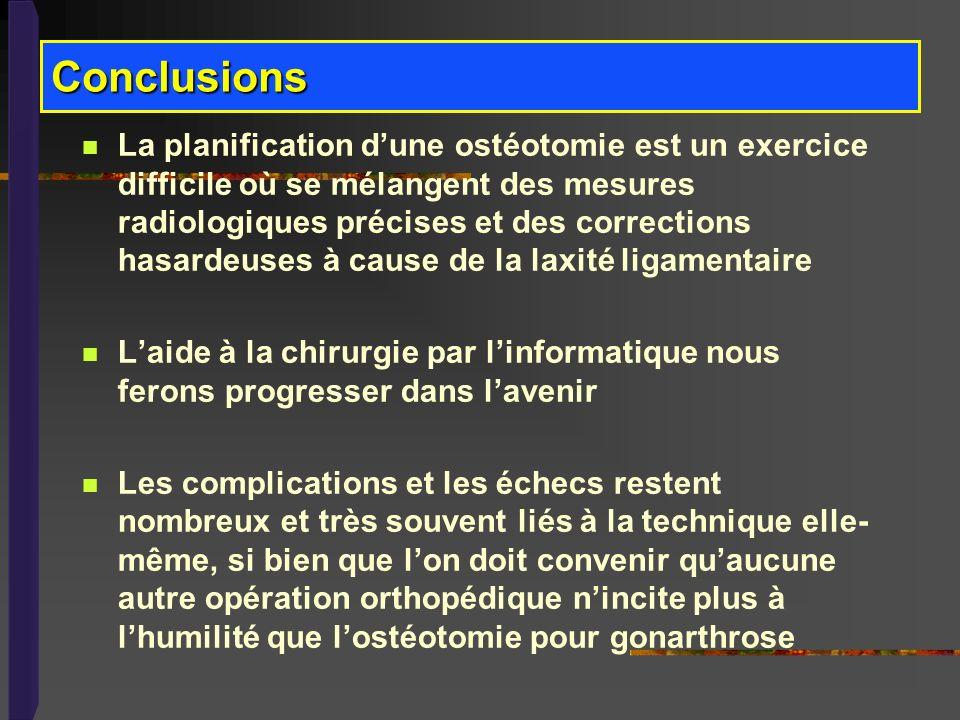 La planification dune ostéotomie est un exercice difficile où se mélangent des mesures radiologiques précises et des corrections hasardeuses à cause d