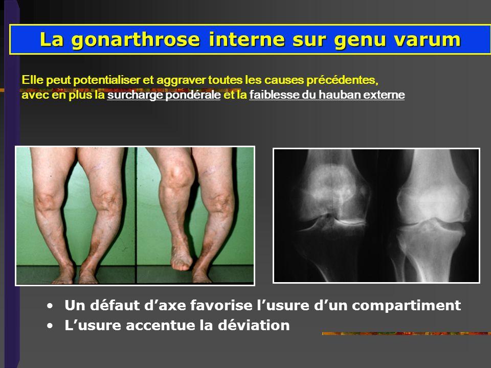 La gonarthrose interne sur genu varum Elle peut potentialiser et aggraver toutes les causes précédentes, avec en plus la surcharge pondérale et la fai
