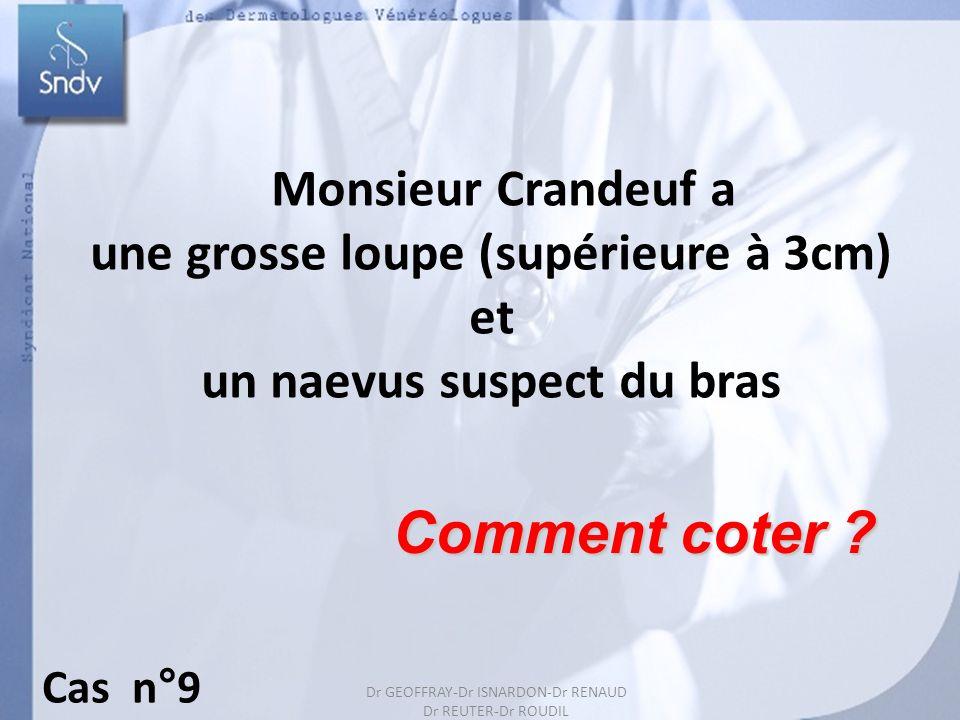 Dr GEOFFRAY-Dr ISARDON-Dr RENAUD Dr REUTER-Dr ROUDIL 20 Monsieur Crandeuf a une grosse loupe (supérieure à 3cm) et un naevus suspect du bras Comment c