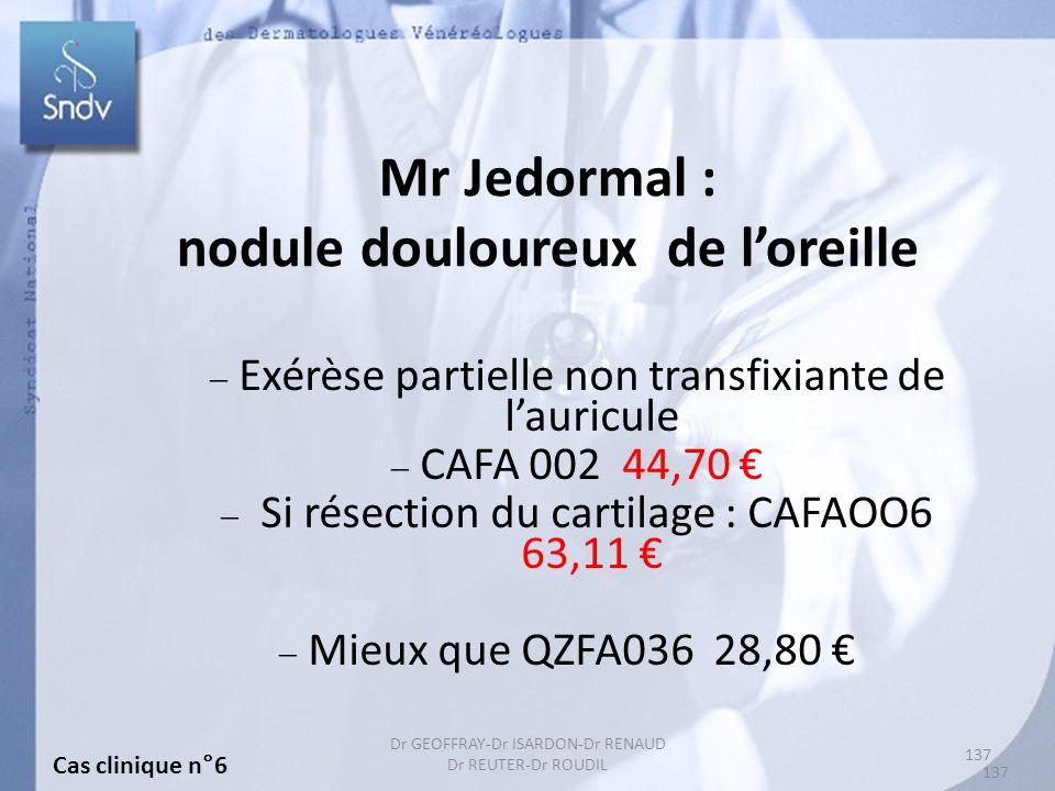 137 Dr GEOFFRAY-Dr ISARDON-Dr RENAUD Dr REUTER-Dr ROUDIL Mr Jedormal : nodule douloureux de loreille Exérèse partielle non transfixiante de lauricule CAFA 002 44,70 Si résection du cartilage : CAFAOO6 63,11 Mieux que QZFA036 28,80 Cas clinique n°6 137