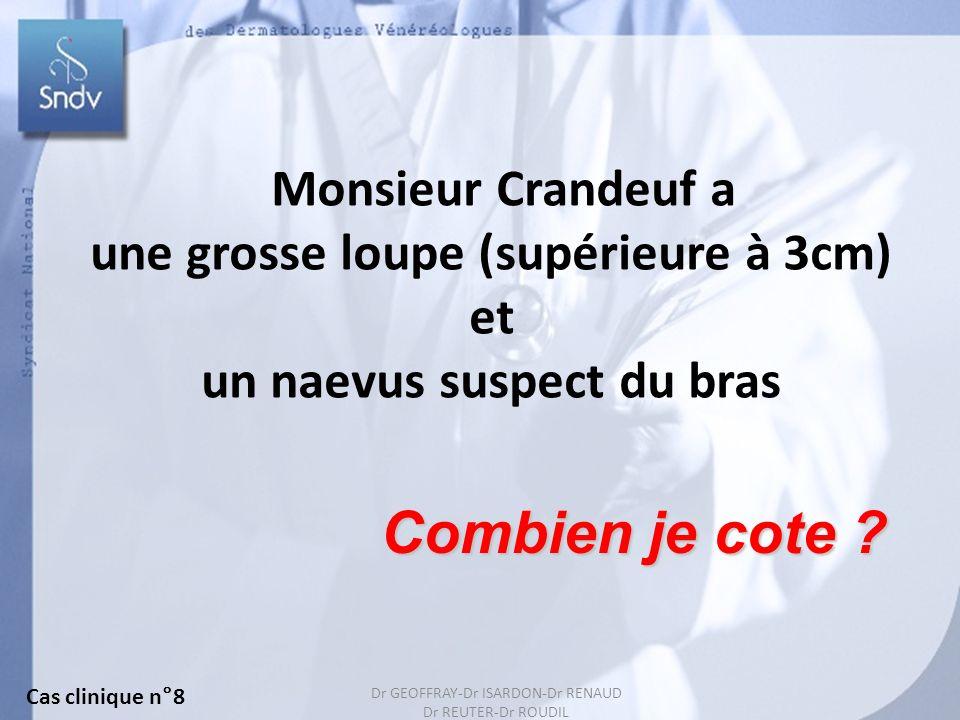 140 Monsieur Crandeuf a une grosse loupe (supérieure à 3cm) et un naevus suspect du bras Combien je cote .