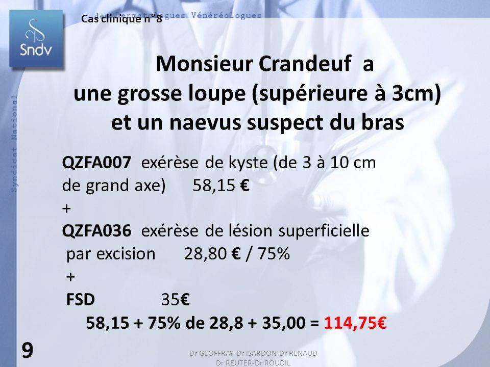 141 Monsieur Crandeuf a une grosse loupe (supérieure à 3cm) et un naevus suspect du bras QZFA007 exérèse de kyste (de 3 à 10 cm de grand axe) 58,15 + QZFA036 exérèse de lésion superficielle par excision 28,80 / 75% + FSD 35 58,15 + 75% de 28,8 + 35,00 = 114,75 9 Cas clinique n°8 Dr GEOFFRAY-Dr ISARDON-Dr RENAUD Dr REUTER-Dr ROUDIL