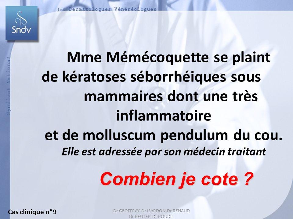142 Mme Mémécoquette se plaint de kératoses séborrhéiques sous mammaires dont une très inflammatoire et de molluscum pendulum du cou. Elle est adressé