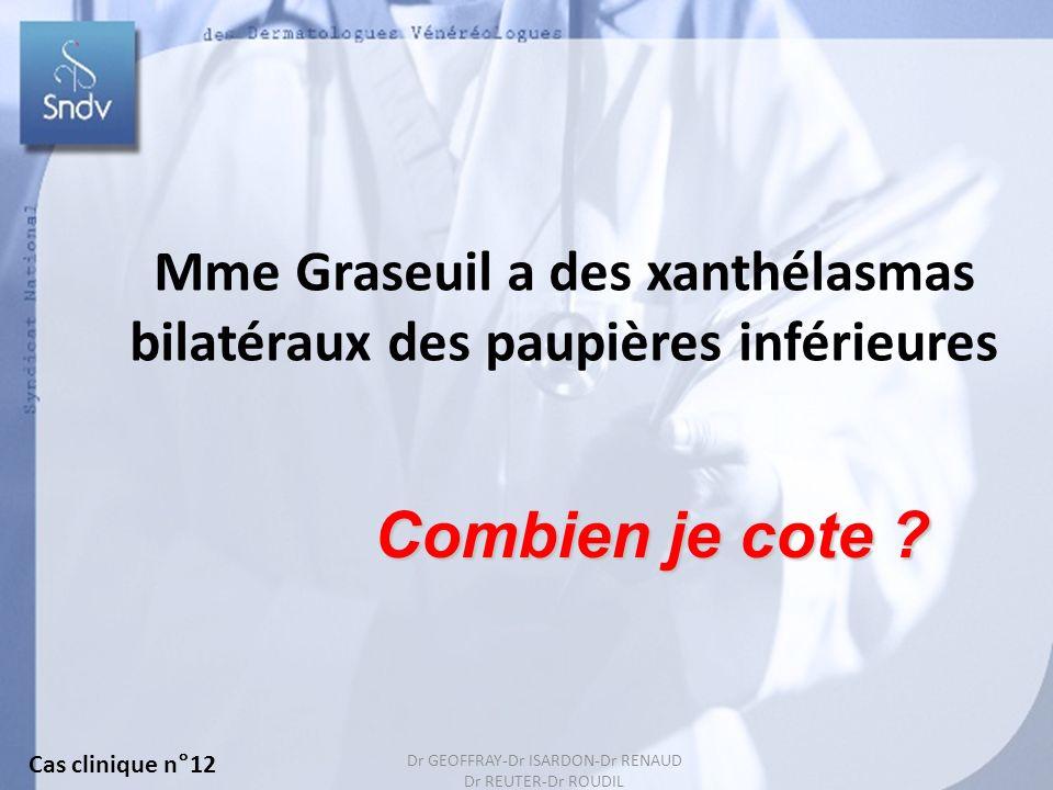148 Mme Graseuil a des xanthélasmas bilatéraux des paupières inférieures Combien je cote ? Cas clinique n°12 Dr GEOFFRAY-Dr ISARDON-Dr RENAUD Dr REUTE