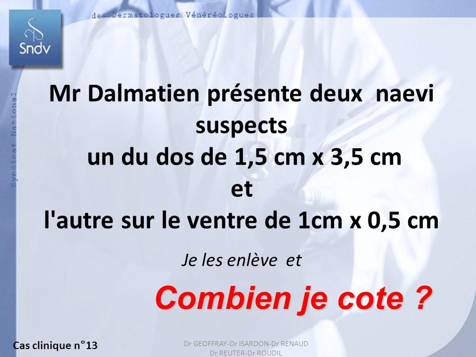 150 Mr Dalmatien présente deux naevi suspects un du dos de 1,5 cm x 3,5 cm et l'autre sur le ventre de 1cm x 0,5 cm Combien je cote ? Je les enlève et