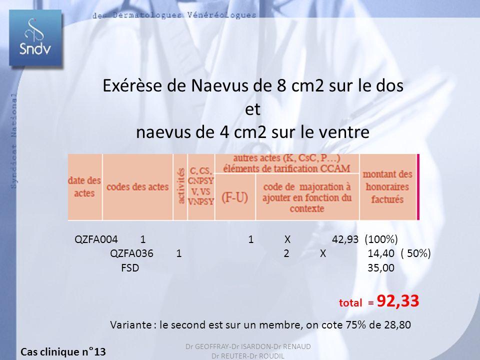 153 Exérèse de Naevus de 8 cm2 sur le dos et naevus de 4 cm2 sur le ventre QZFA004 1 1 X 42,93 (100%) QZFA036 1 2 X 14,40 ( 50%) FSD 35,00 total = 92,33 Variante : le second est sur un membre, on cote 75% de 28,80 Cas clinique n°13 Dr GEOFFRAY-Dr ISARDON-Dr RENAUD Dr REUTER-Dr ROUDIL