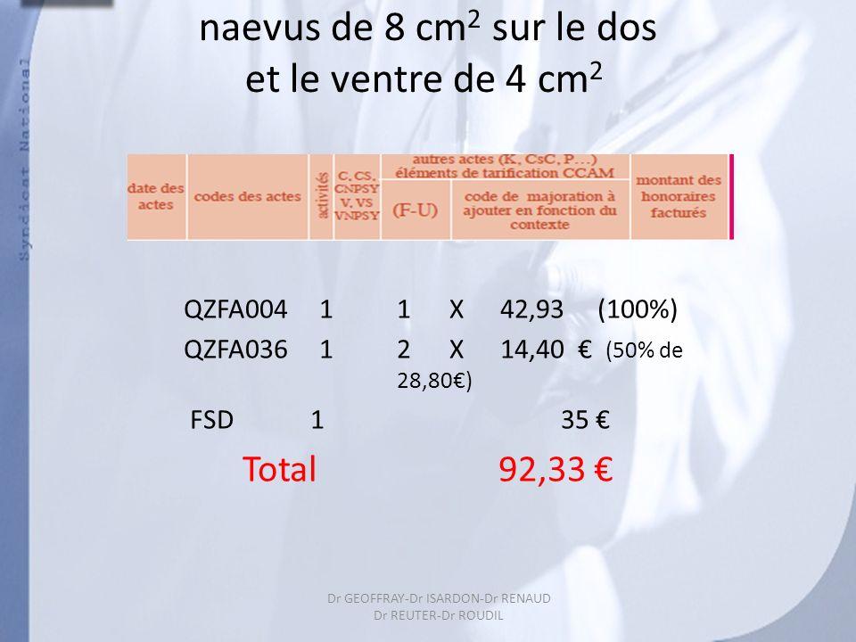 64 naevus de 8 cm 2 sur le dos et le ventre de 4 cm 2 QZFA004 11 X 42,93 (100%) QZFA036 1 2 X 14,40 (50% de 28,80) FSD 1 35 Total 92,33 Dr GEOFFRAY-Dr ISARDON-Dr RENAUD Dr REUTER-Dr ROUDIL