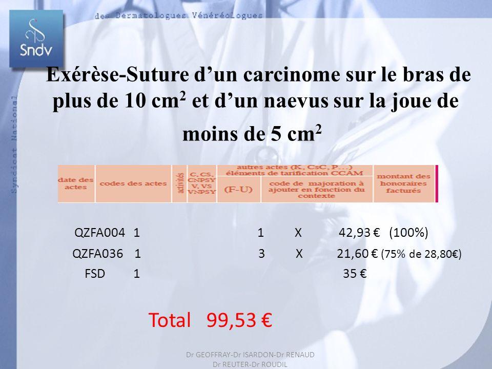 65 Exérèse-Suture dun carcinome sur le bras de plus de 10 cm 2 et dun naevus sur la joue de moins de 5 cm 2 QZFA004 1 1 X 42,93 (100%) QZFA036 1 3 X 21,60 (75% de 28,80) FSD 1 35 Total 99,53 Dr GEOFFRAY-Dr ISARDON-Dr RENAUD Dr REUTER-Dr ROUDIL