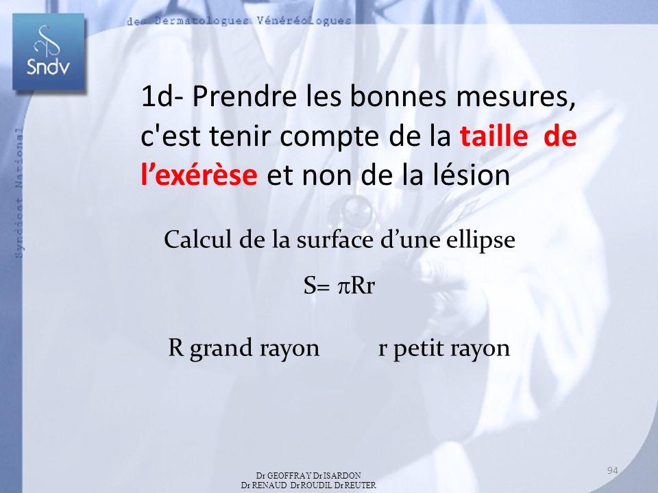 1d- Prendre les bonnes mesures, c est tenir compte de la taille de lexérèse et non de la lésion Calcul de la surface dune ellipse S= Rr R grand rayon r petit rayon Dr GEOFFRAY Dr ISARDON Dr RENAUD Dr ROUDIL Dr REUTER 94