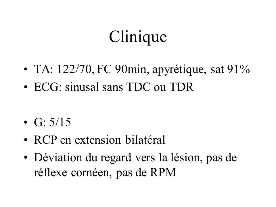 Clinique TA: 122/70, FC 90min, apyrétique, sat 91% ECG: sinusal sans TDC ou TDR G: 5/15 RCP en extension bilatéral Déviation du regard vers la lésion,