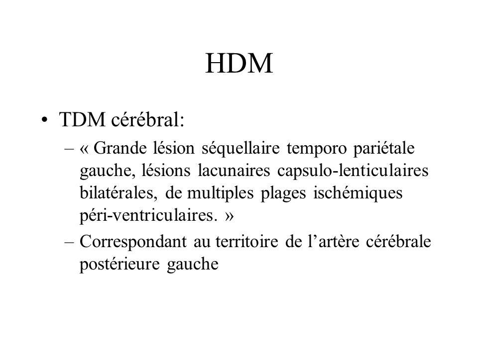 HDM TDM cérébral: –« Grande lésion séquellaire temporo pariétale gauche, lésions lacunaires capsulo-lenticulaires bilatérales, de multiples plages isc