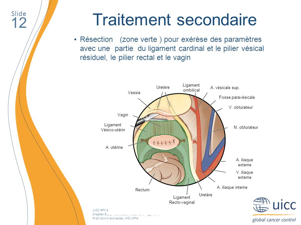 UICC HPV and Cervical Cancer Curriculum Chapter 6.c.1. Methods of treatment - Algorithm Prof. Achim Schneider, MD, MPH Slide 12 Traitement secondaire