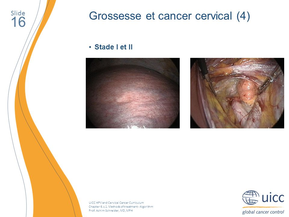 UICC HPV and Cervical Cancer Curriculum Chapter 6.c.1. Methods of treatment - Algorithm Prof. Achim Schneider, MD, MPH Slide 16 Grossesse et cancer ce