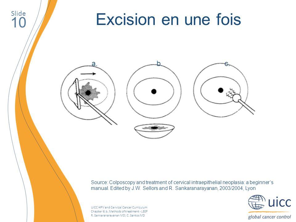UICC HPV and Cervical Cancer Curriculum Chapter 6.b. Methods of treatment - LEEP R. Sankaranarayanan MD; C. Santos MD Slide 10 Excision en une fois a.