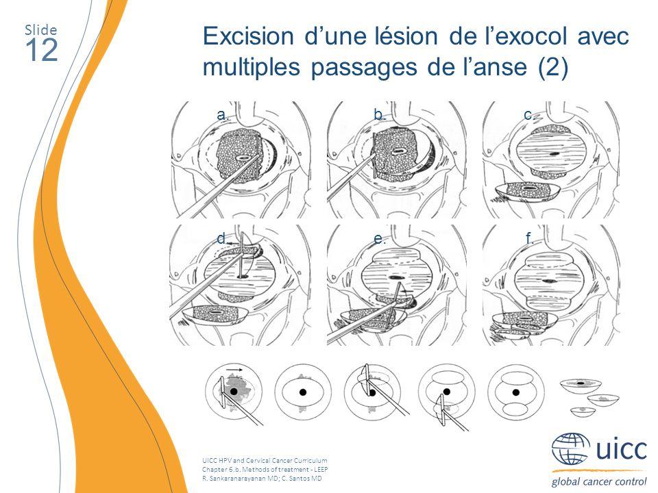 UICC HPV and Cervical Cancer Curriculum Chapter 6.b. Methods of treatment - LEEP R. Sankaranarayanan MD; C. Santos MD Slide 12 Excision dune lésion de