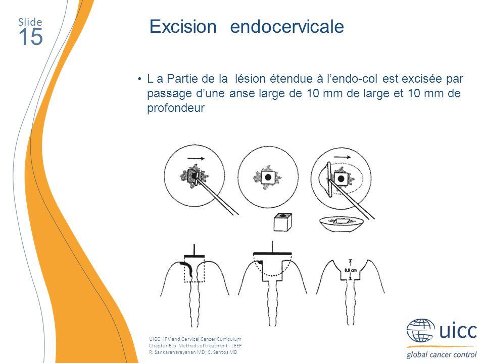 UICC HPV and Cervical Cancer Curriculum Chapter 6.b. Methods of treatment - LEEP R. Sankaranarayanan MD; C. Santos MD Slide 15 Excision endocervicale