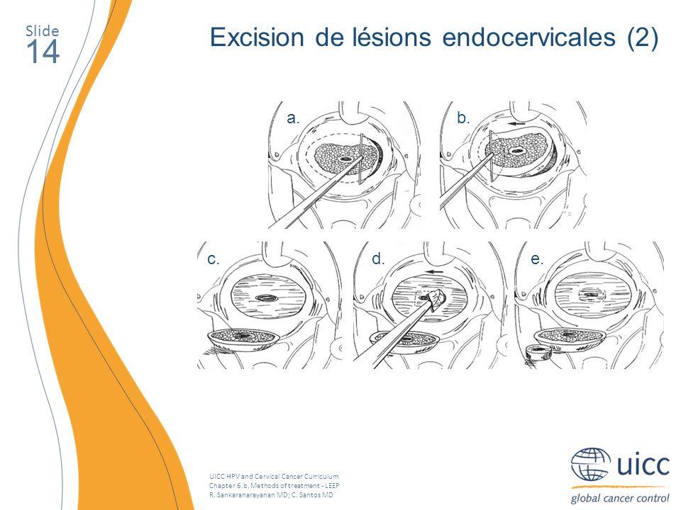 UICC HPV and Cervical Cancer Curriculum Chapter 6.b. Methods of treatment - LEEP R. Sankaranarayanan MD; C. Santos MD Slide 14 Excision de lésions end