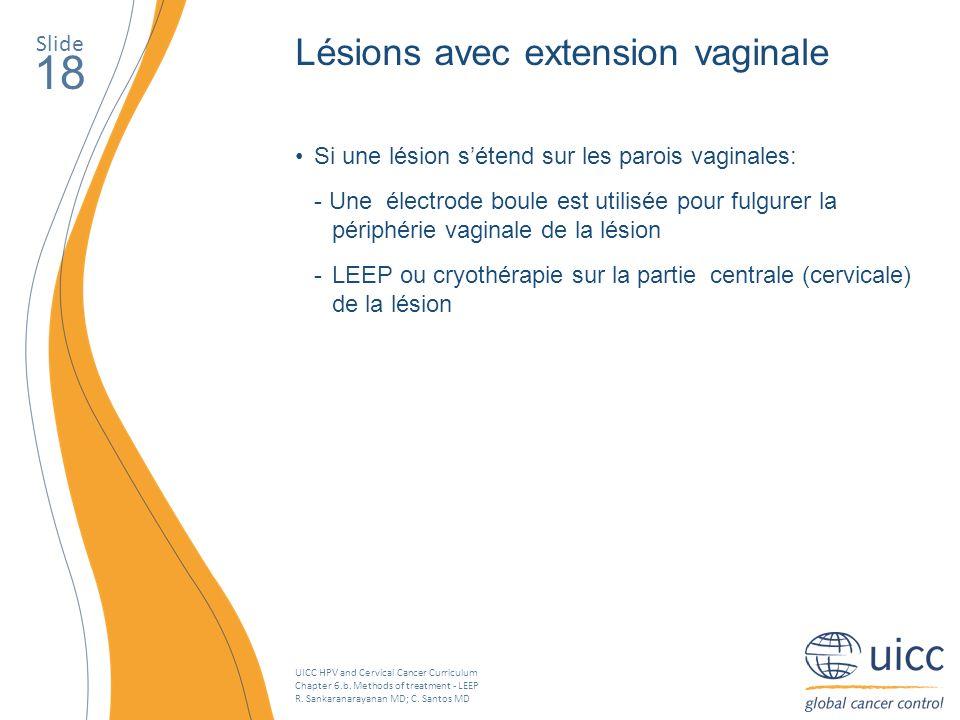 UICC HPV and Cervical Cancer Curriculum Chapter 6.b. Methods of treatment - LEEP R. Sankaranarayanan MD; C. Santos MD Slide 18 Lésions avec extension