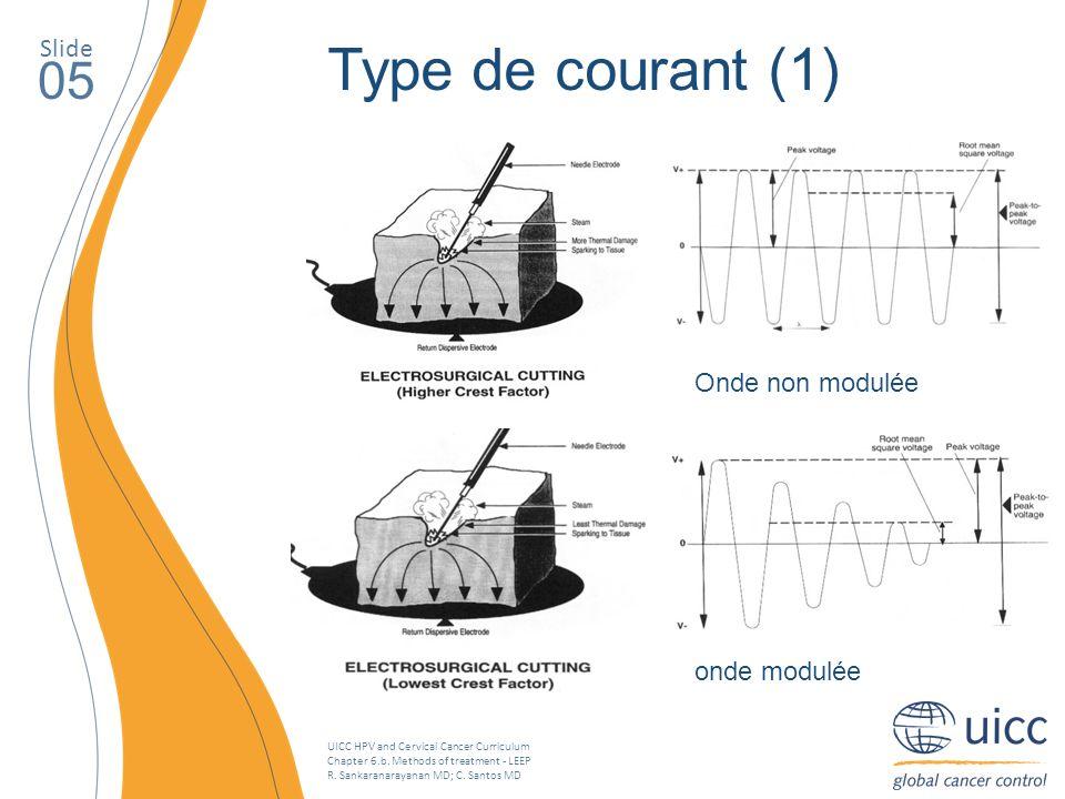 UICC HPV and Cervical Cancer Curriculum Chapter 6.b. Methods of treatment - LEEP R. Sankaranarayanan MD; C. Santos MD Slide 05 Type de courant (1) Ond