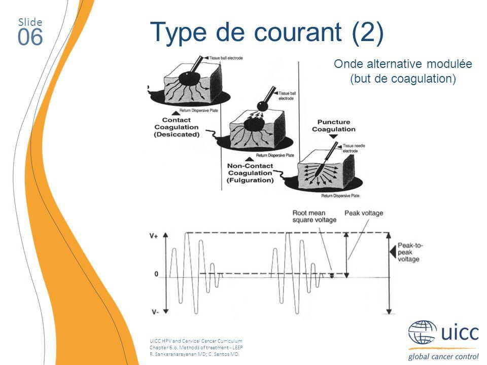 UICC HPV and Cervical Cancer Curriculum Chapter 6.b. Methods of treatment - LEEP R. Sankaranarayanan MD; C. Santos MD Slide 06 Type de courant (2) Ond