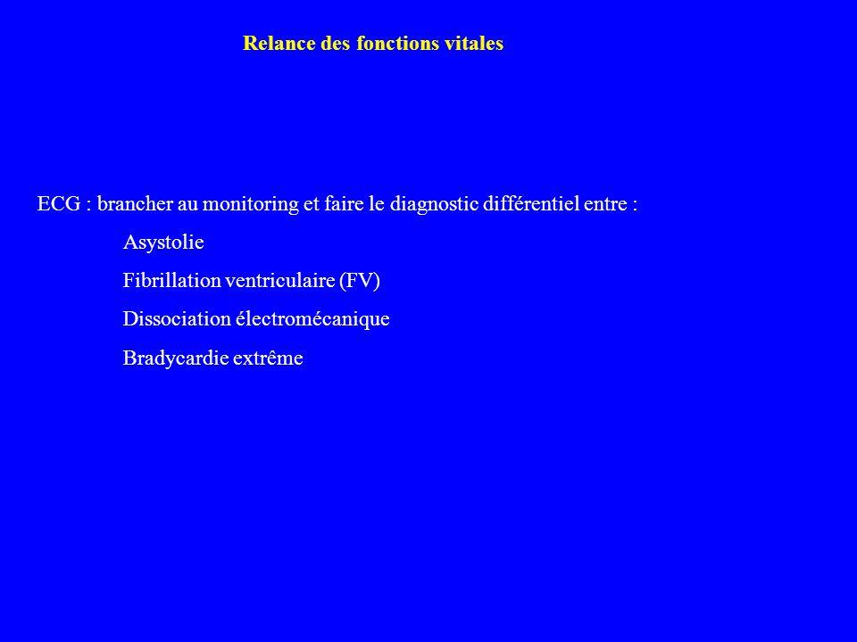 ECG : brancher au monitoring et faire le diagnostic différentiel entre : Asystolie Fibrillation ventriculaire (FV) Dissociation électromécanique Brady