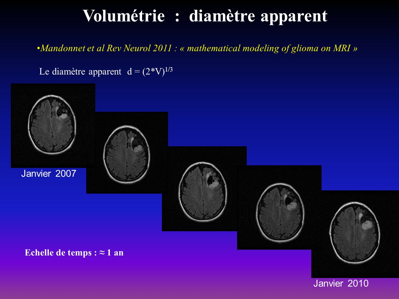 Volumétrie : diamètre apparent Mandonnet et al Rev Neurol 2011 : « mathematical modeling of glioma on MRI » Le diamètre apparent d = (2*V) 1/3 Janvier