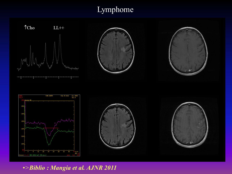 Lymphome >Biblio : Mangia et al. AJNR 2011 Cho LL++