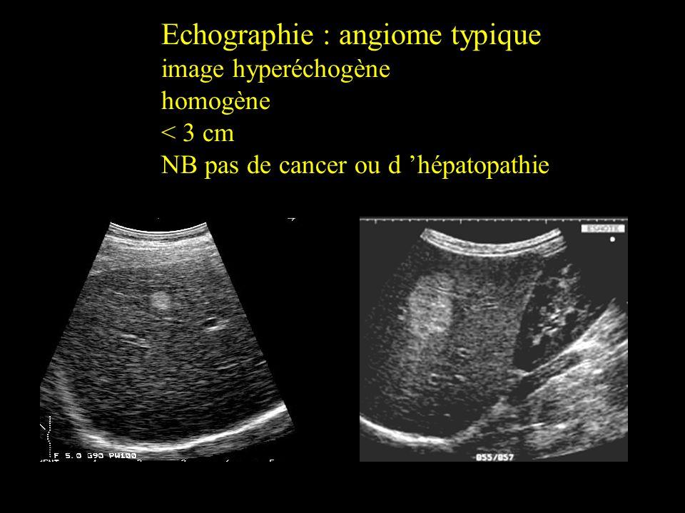 Echographie : angiome typique image hyperéchogène homogène < 3 cm NB pas de cancer ou d hépatopathie