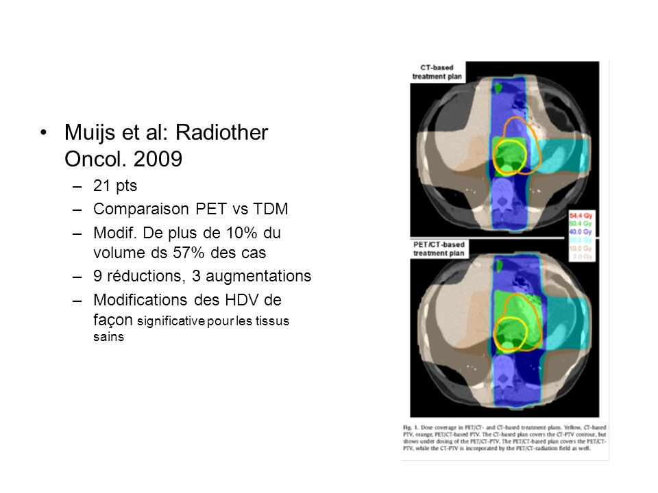 Muijs et al: Radiother Oncol. 2009 –21 pts –Comparaison PET vs TDM –Modif. De plus de 10% du volume ds 57% des cas –9 réductions, 3 augmentations –Mod