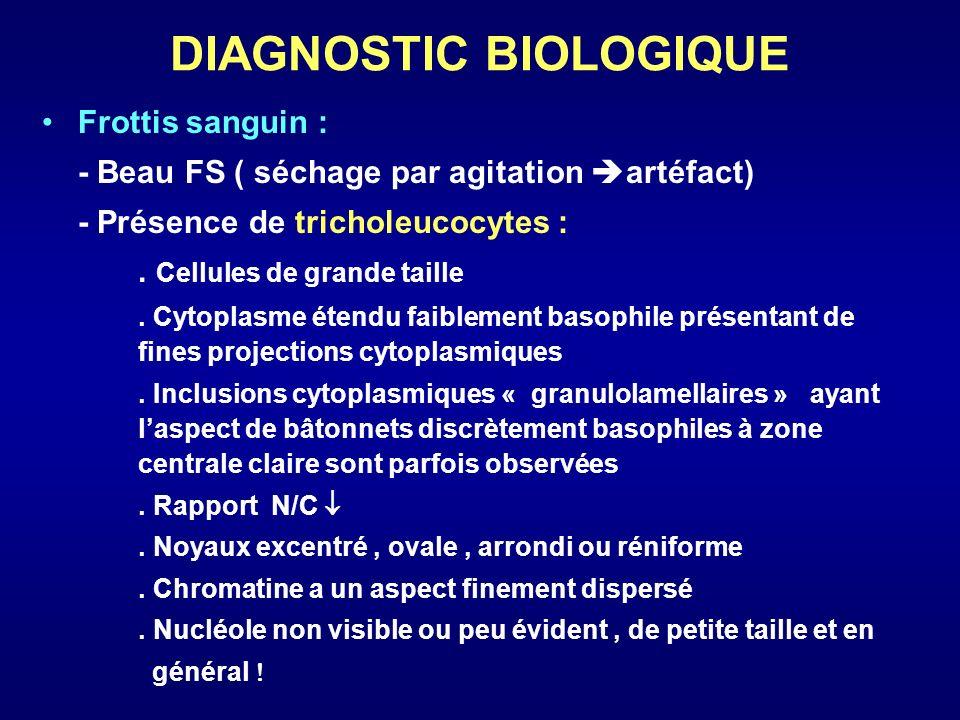 DIAGNOSTIC BIOLOGIQUE Frottis sanguin : - Beau FS ( séchage par agitation artéfact) - Présence de tricholeucocytes :. Cellules de grande taille. Cytop