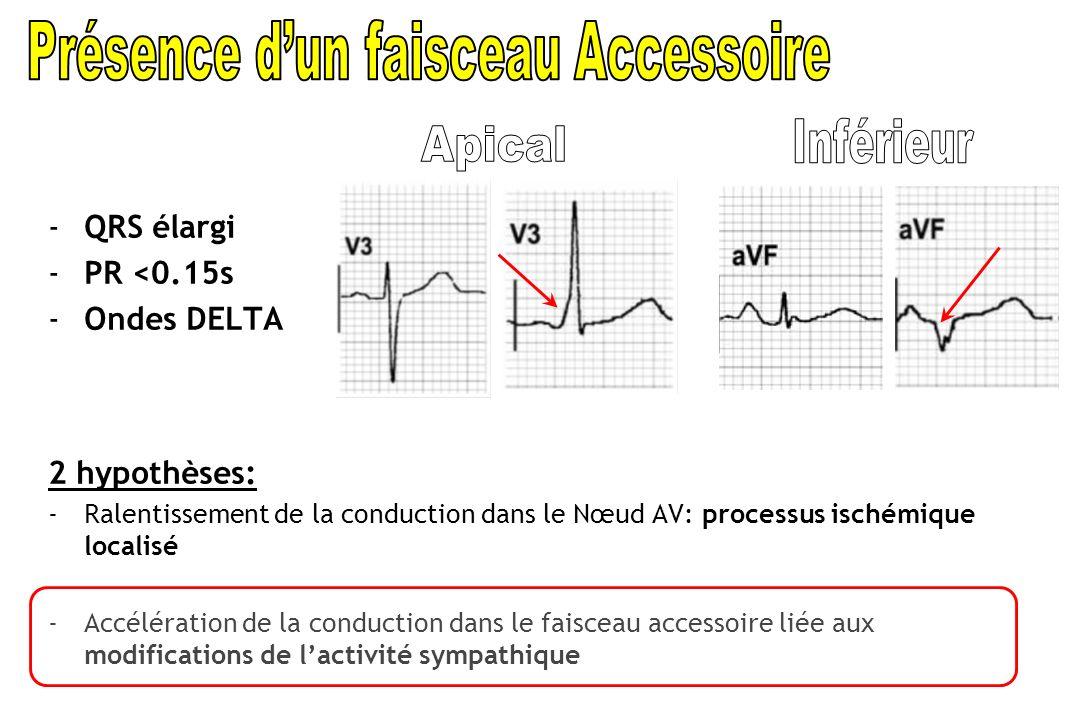 -QRS élargi -PR <0.15s -Ondes DELTA 2 hypothèses: -Ralentissement de la conduction dans le Nœud AV: processus ischémique localisé - Accélération de la