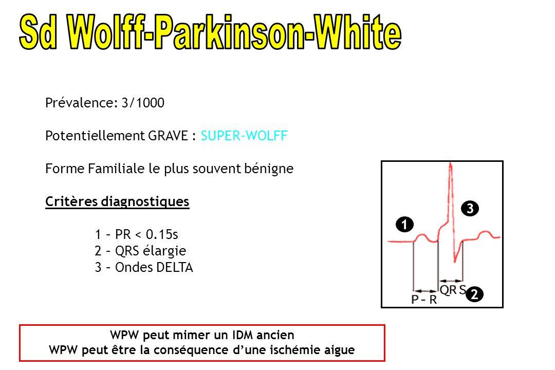 1 2 3 Prévalence: 3/1000 Potentiellement GRAVE : SUPER-WOLFF Forme Familiale le plus souvent bénigne Critères diagnostiques 1 – PR < 0.15s 2 – QRS éla