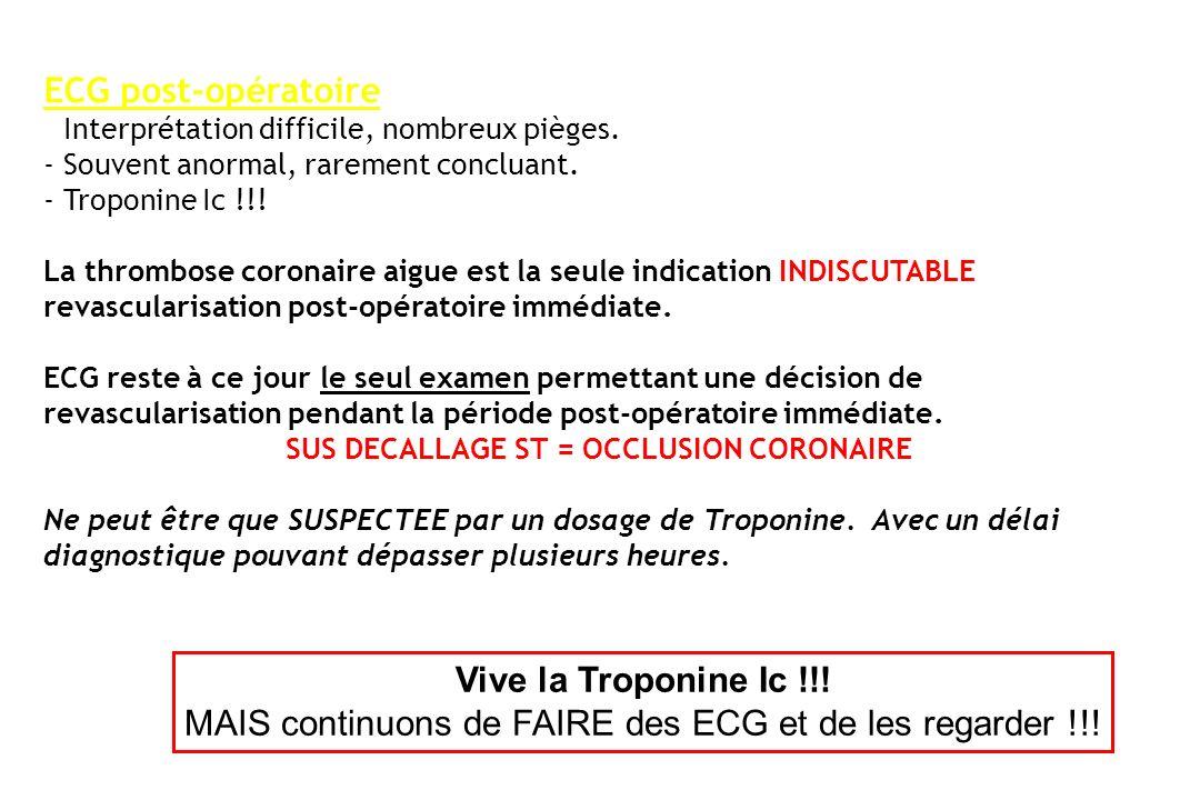 ECG post-opératoire : - Interprétation difficile, nombreux pièges. - Souvent anormal, rarement concluant. - Troponine Ic !!! La thrombose coronaire ai